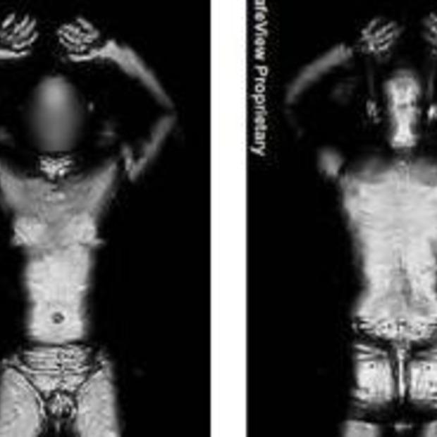 Body scanners op het vliegveld 'verhogen kans op kanker'